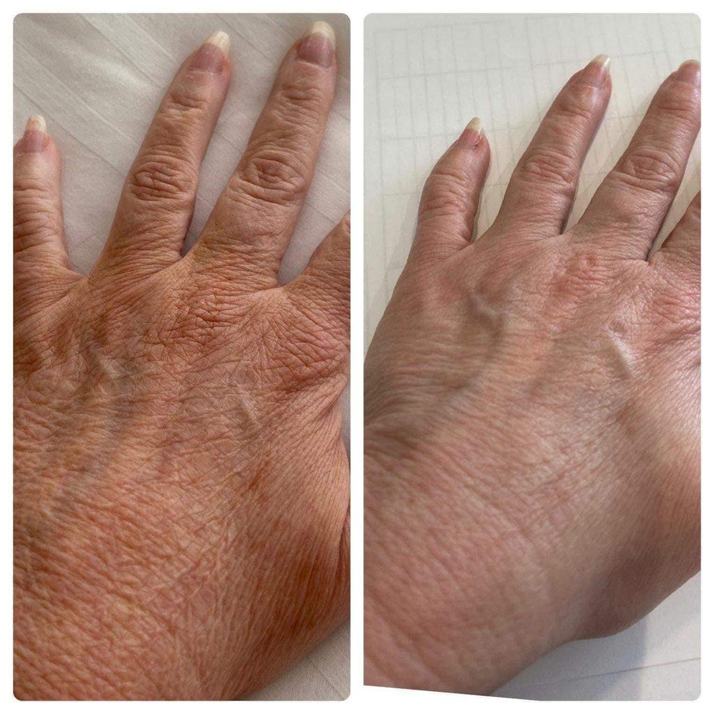 Hände nach der Behandlung mit dem Collagen Elixier Vorher Nachher Bild